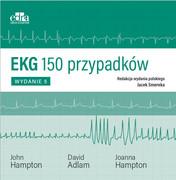 EKG - zdjęcie 3